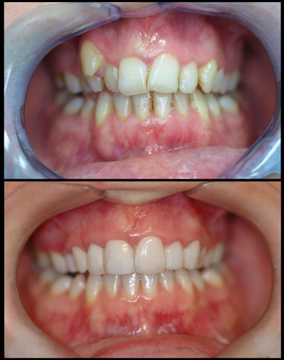 Cosmetic dental work before and after