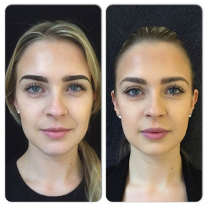 Before and After - Edinburgh PR