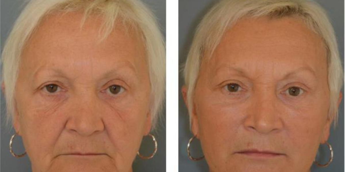 Glasgow cosmetic doctor, Dr Q, becomes the first in Scotland to offer pioneering permanent face lift. Story told by Hair and Beauty PR experts.
