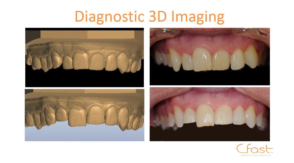 3D teeth brace part of dental PR for lubiju